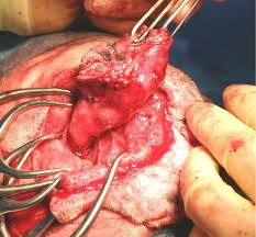 An ear canal being dissected free of the surrounding tissue.